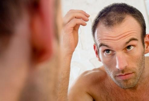 Nhân sâm có công dụng hỗ trợ tăng trưởng tóc cho nam giới