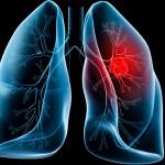 nấm lim xanh điều trị bênh ung thư phổi