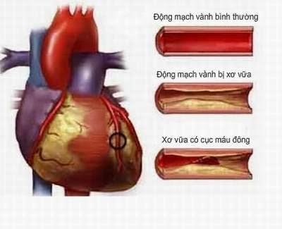 Nấm lim xanh Điều trị tim mạch, huyết áp