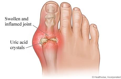Nấm lim xanh bệnh nhân gout