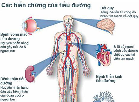 Tác dụng của nhân sâm đối với bệnh tiểu đường 1