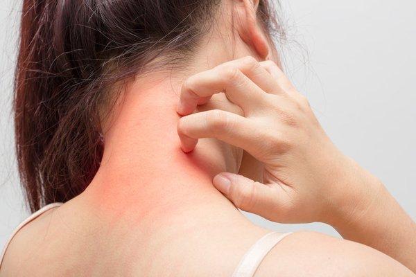 dị ứng là triệu chứng thường gặp và ảnh hưởng xấu đến sức khoẻ