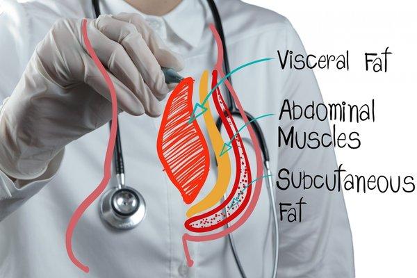 mỡ nội tạng gây ra nhiều vấn đề về sức khỏe