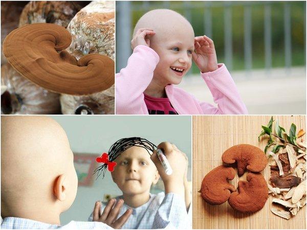 dùng nấm linh chi hỗ trợ điều trị cho bệnh nhân ung thư