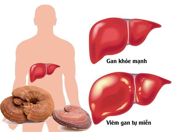 Nấm linh chi tác động tích cực với bệnh gan