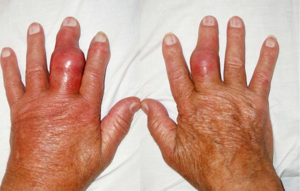 Bệnh gout diễn tiến nhanh và vô cùng đáng sợ