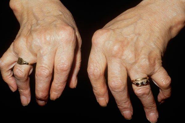 Bệnh viêm khớp có thể dẫn đến tàn phế